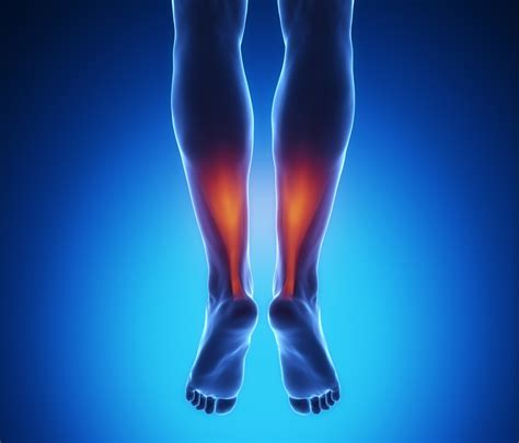 Achilles Tendon Rupture and Tendonitis Explained