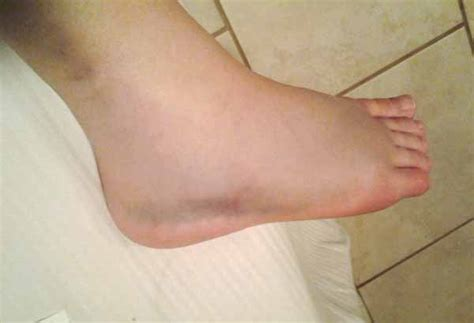 Artwife Needs a Life: Navigating Life With A Broken Ankle
