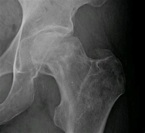 Avascular necrosis of the femoral head - Physiopedia