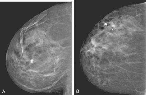 Unusual and Problematic Types of Breast Cancers: DCIS