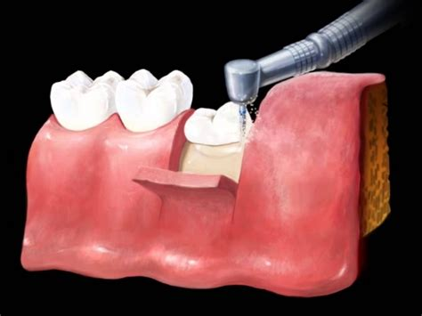Teeth removal: Complete Guide, Types and Functions - IDW