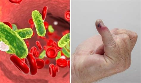Sepsis symptoms: What causes sepsis? How to prevent the