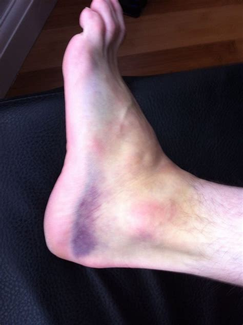 How long does a grade 1 ankle sprain take to heal? - Quora