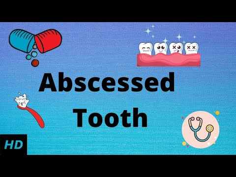 Toothache Swelling Of Cheek - Root Canal Toothache