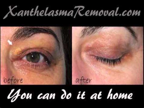 Xanthelasma removal at home - YouTube