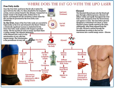 Laser Lipo - The Freedom Day Spa