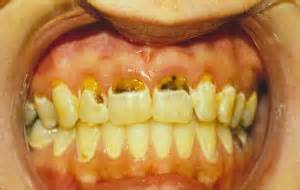 Tooth Decay Pictures - Phoenix Dentist | Chandler Dentist