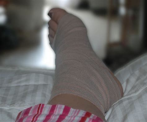 Sprained my ankle